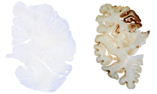 What is CTE? | <b>Concussion</b> Legacy Foundation